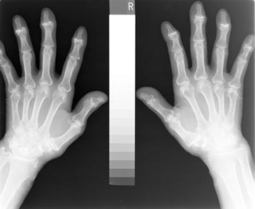 骨粗鬆症検査(骨密度検査)